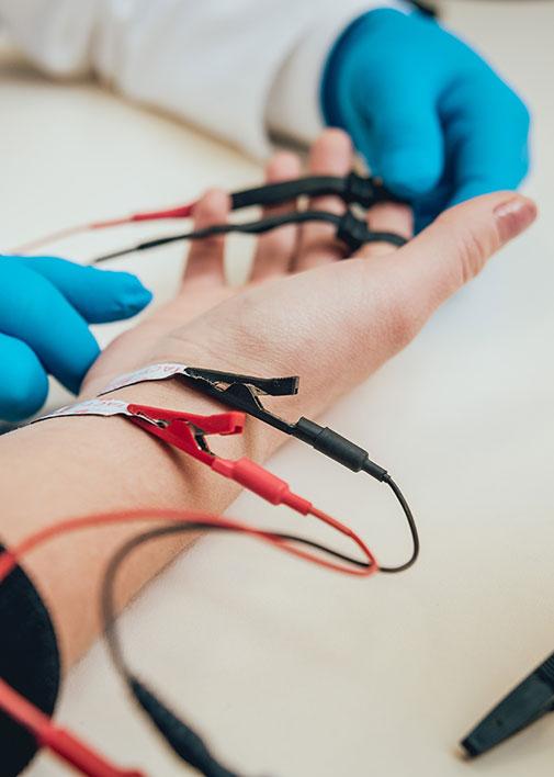 Gros plan sur l'avant-bras d'un patient qui passe un électromyogramme